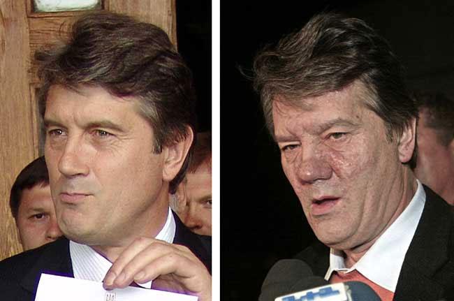 Wiktor Juschtschenko, presidente dell'Ucraina, prima e dopo l'intossicazione di diossina - wiktor_juschtschenko